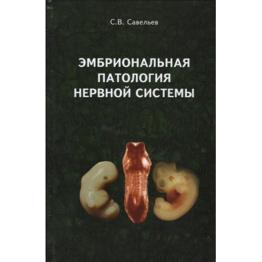 Эмбриональная патология нервной системы. Савельев С.В.